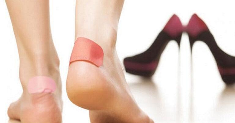 10 Tüyo ile Ayakkabının Vurma Derdine Son