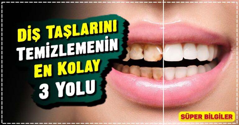 Diş Taşlarını Temizlemenin En Kolay 3 Yolu