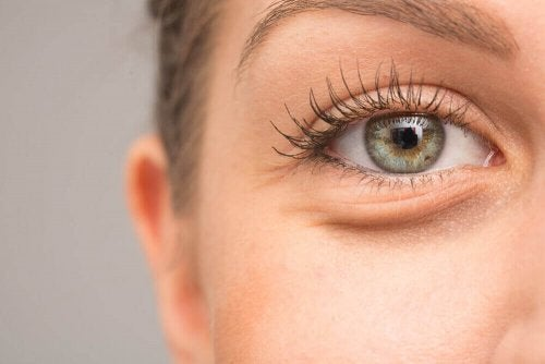 Gözlerinizin Şişmesinin 7 Muhtemel Sebebi