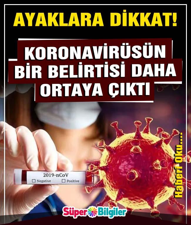 Araştırmalar sonucunda açıklandı! Corona virüs salgınında yeni bir belirti daha ortaya çıktı 2
