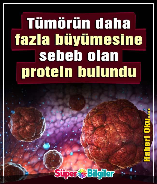 Tümörün Daha Fazla Büyümesine Sebeb Olan Protein Bulundu